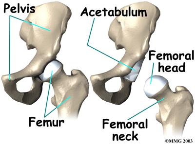How the ASR XL Acetabular System Causes Bone Deterioration